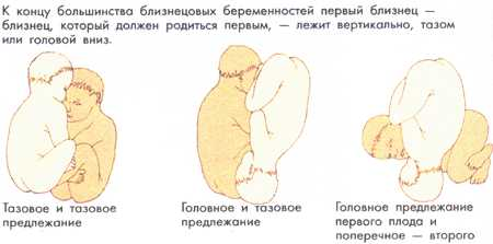 Можно ли узнать самой, как лежит ребенок в животе матери? - беременность