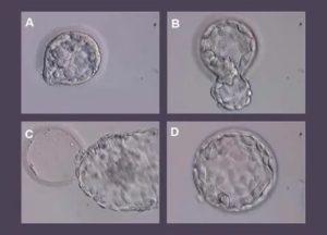 Метипред перед переносом эмбрионов