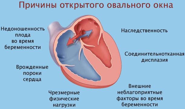 Открытое овальное окно в сердце у ребенка что это такое причины как лечить