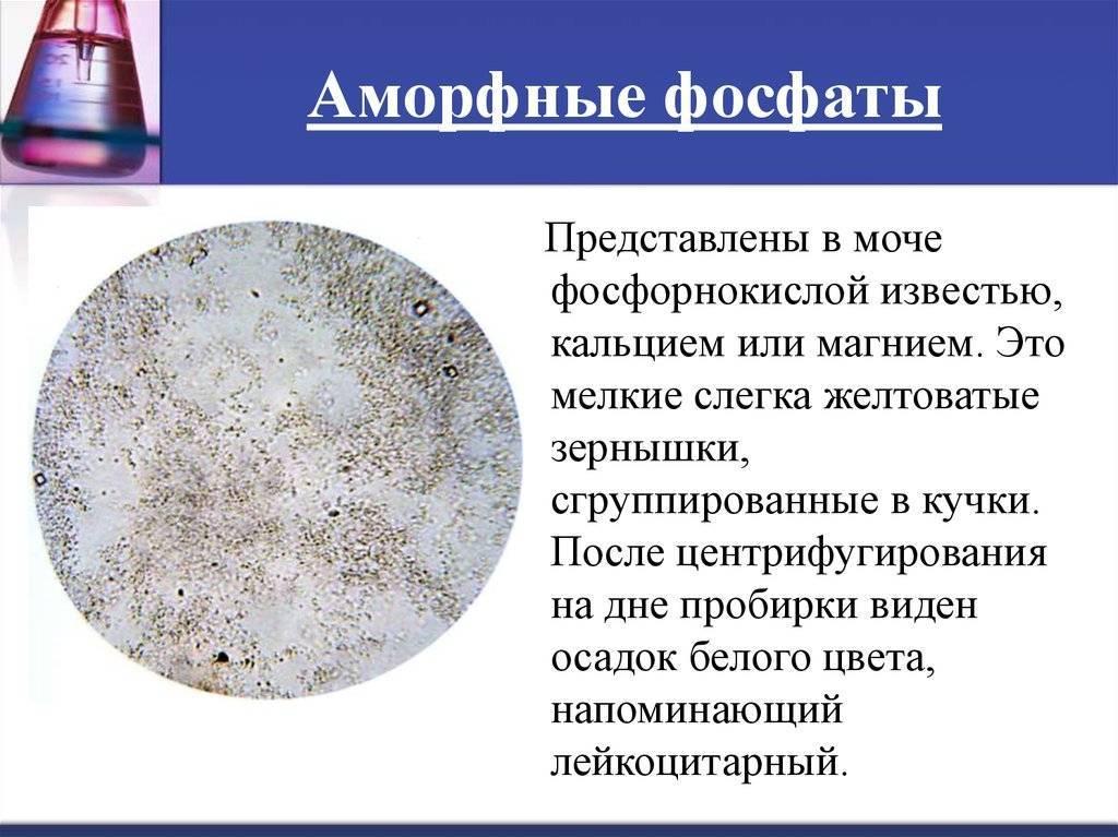 Аморфные кристаллы в моче у ребенка — почки