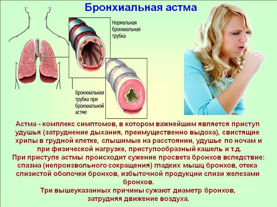 Начало астмы у детей: как начинается, первые симптомы и признаки