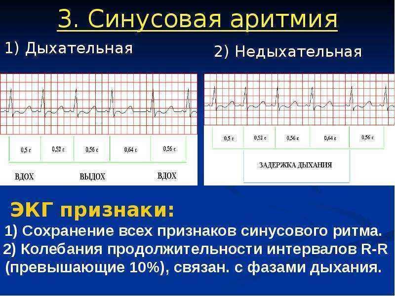 Синусовая дыхательная аритмия у детей — сердце