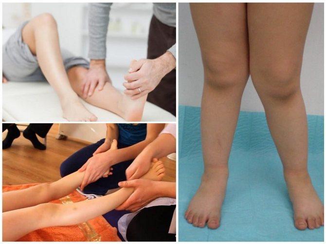 Вальгусная деформация коленных суставов у детей лечение | лечение суставов