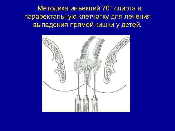 Выпадение прямой кишки у ребенка лечение в домашних условиях - neyromedbrz.ru