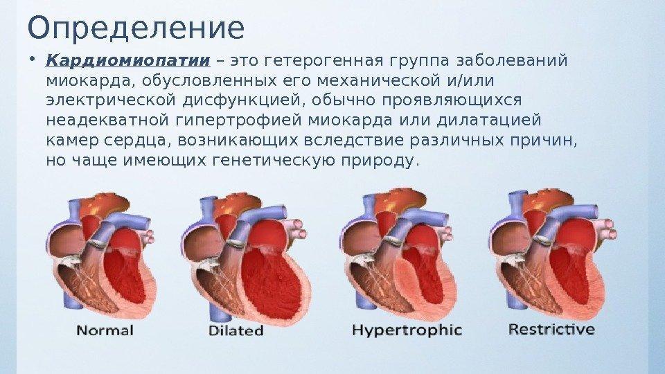 Функциональные кардиопатии - библиотека доктора