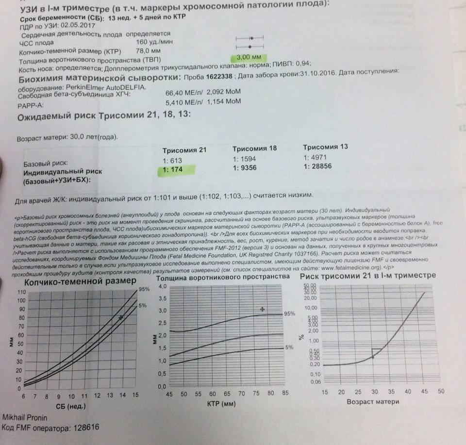 Какова норма при анализе на трисомию 21?