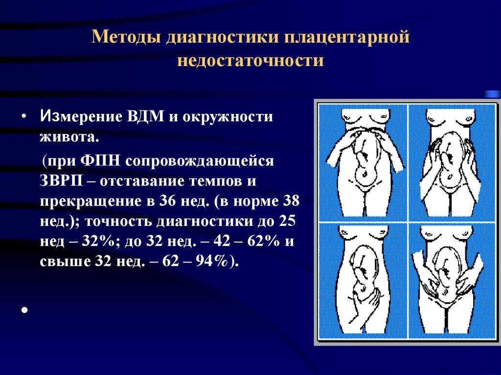 Фетоплацентарная недостаточность при беременности: причины и стадии, симптомы и лечение