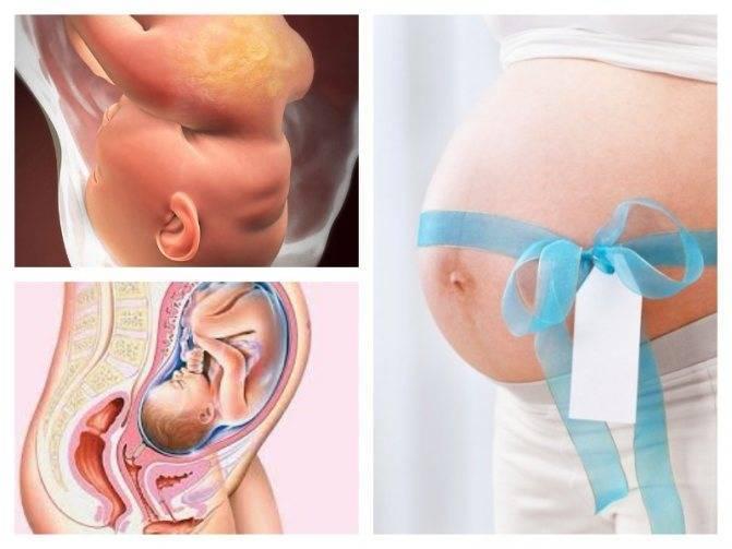 34 неделя беременности: изменения в организме матери и малыша, ощущения, медицинские обследования, питание и режим, факторы риска и опасности. календарь беременности по неделям.