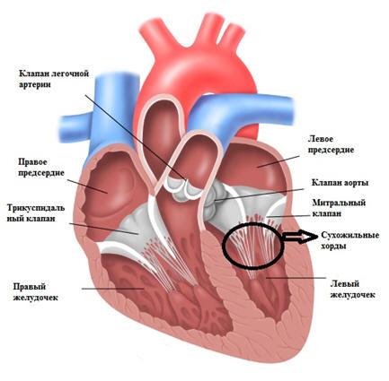 Дополнительная хорда левого желудочка у ребенка — сердце