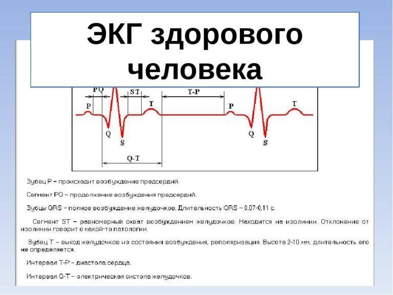 Расшифровка экг ребенка - вопрос кардиологу - 03 онлайн