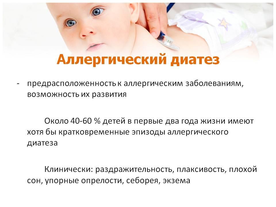 Диатез у ребенка и способы его лечения