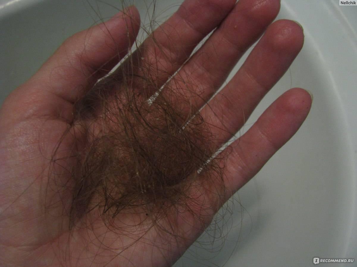 Выпадение волос после родов, причины, что делать, рецепты лечебных масок