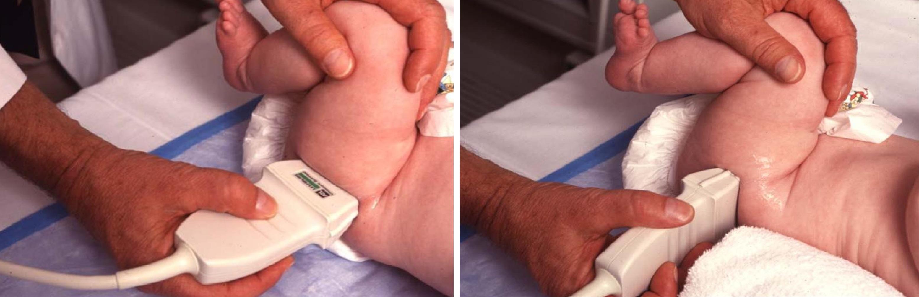 Узи тазобедренного сустава у новорожденных норма