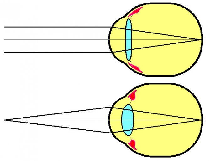 Что делать если диагностировали спазм аккомодации? капли для глаз расслабляющие мышцы