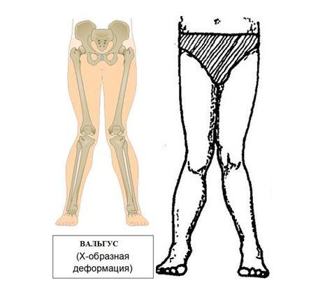 Вальгус коленных суставов у детей и взрослых: причины, диагностика, лечение