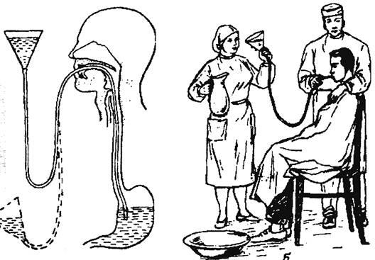 Промывание желудка у детей: алгоритм, подготовка, техника