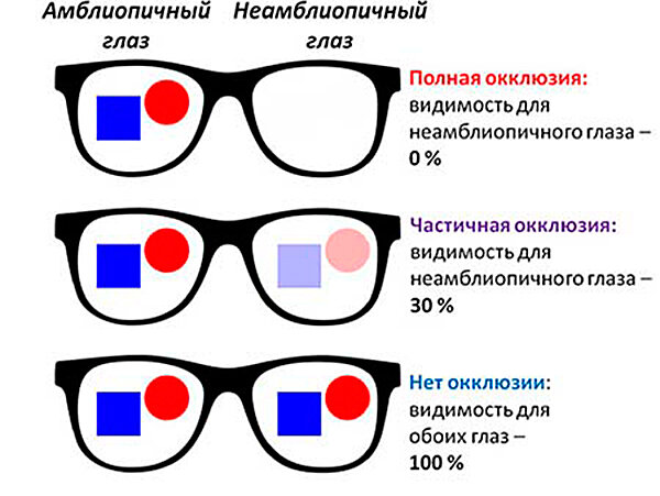 Синдром ленивого глаза (амблиопия) у детей и взрослых: классификация, симптомы и лечение