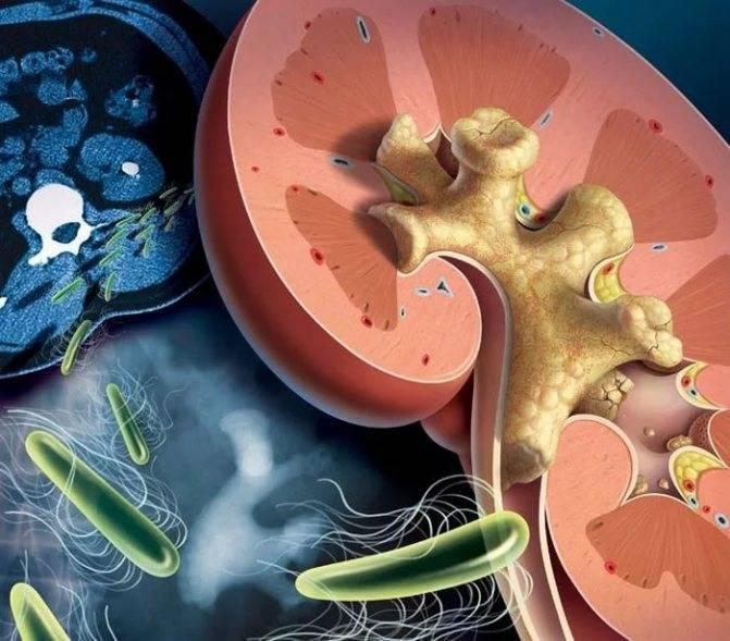 Инфекции мочевыводящих путей у детей: лечение и профилактика