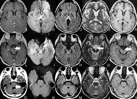 Резидуальная энцефалопатия у детей — что это такое?