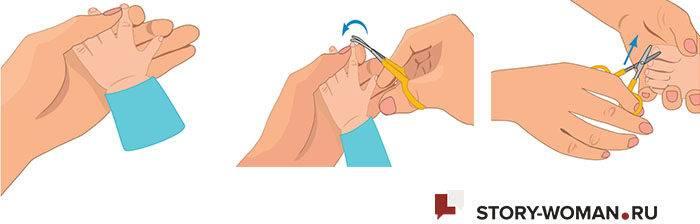 Как правильно стричь ногти новорожденным?