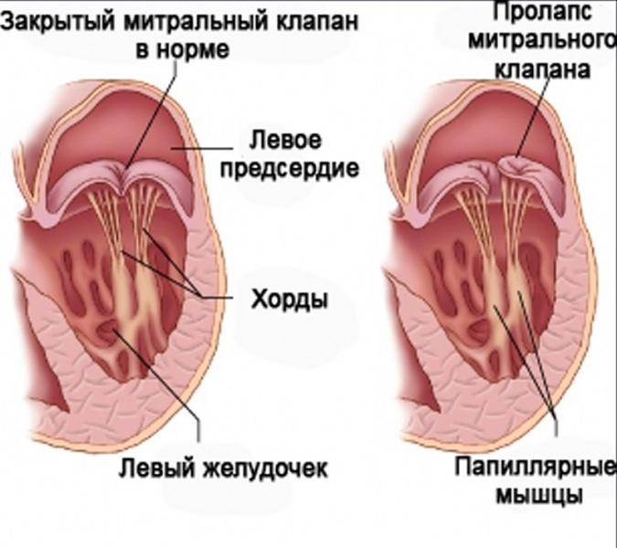Дополнительная хорда в сердце у ребенка: дхлж, лишняя хорда, хорда левого желудочка сердца