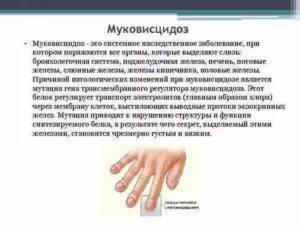 Что за болезнь муковисцидоз у детей, какие симптомы и лечение