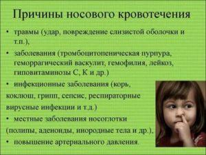 Кровь из носа у детей – причины патологии и правильные действия взрослых