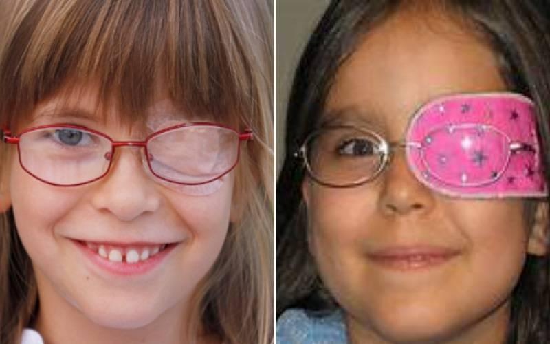 Амблиопия у детей: лечение синдрома «ленивого» глаза