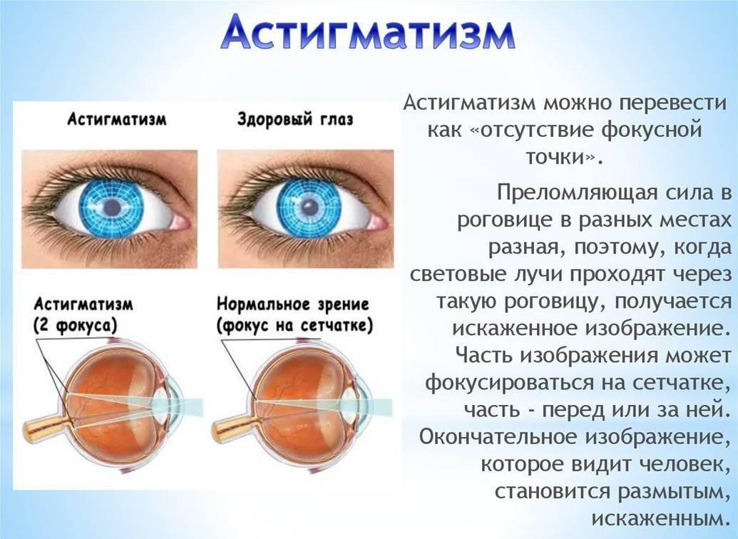 Лечение астигматизма у детей, эффективные препараты