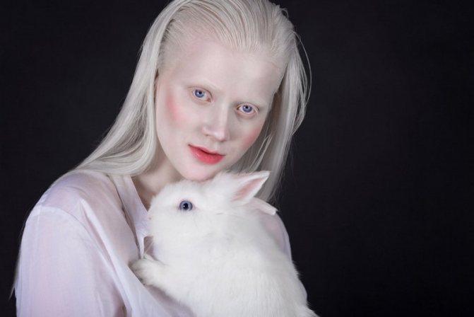 «белая ворона», или особенности здоровья и развития ребенка-альбиноса. люди-альбиносы: как выглядят и где живут, опасен ли альбинизм? цвет волос альбинос