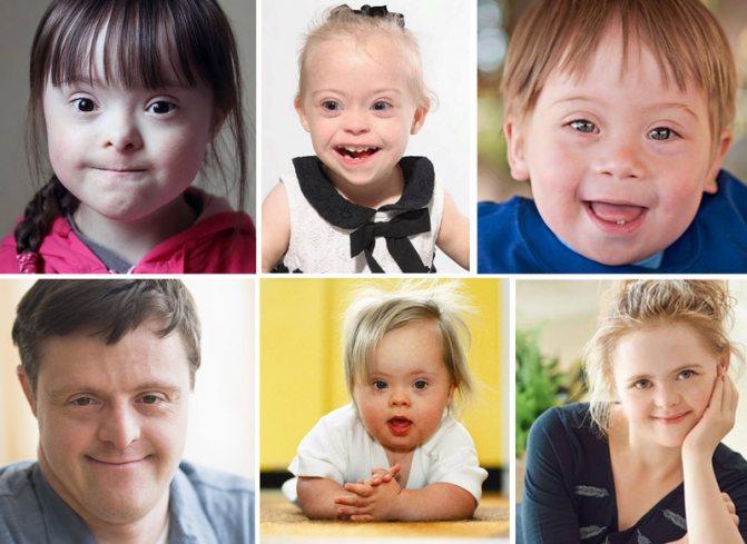 Синдром дауна - трисомия 21