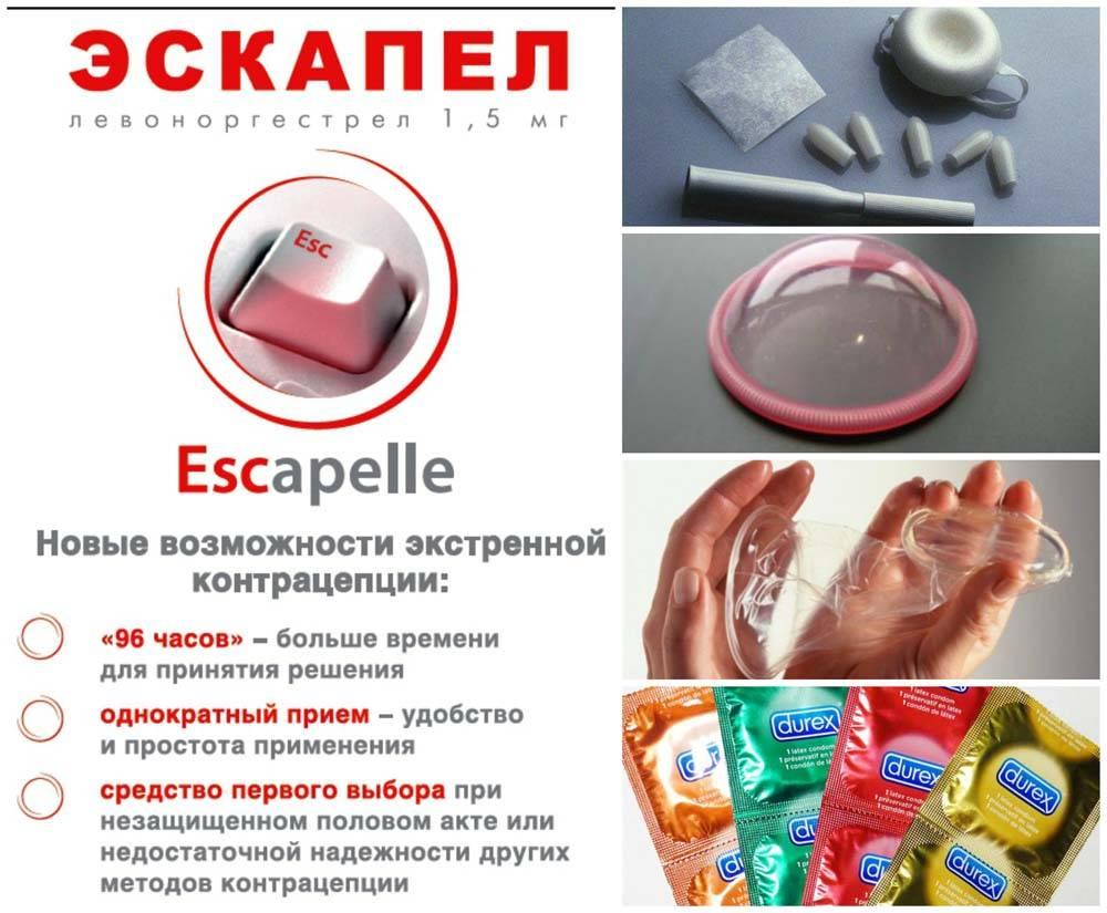 Противозачаточный крем, гель, мазь – список вагинальных средств контрацепции - головная боль