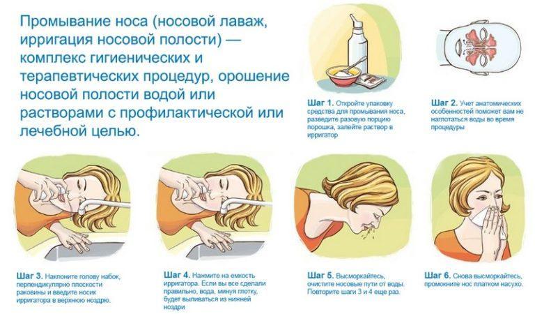 Как промывать нос физраствором: рецепты с применением натрия хлорида в домашних условиях
