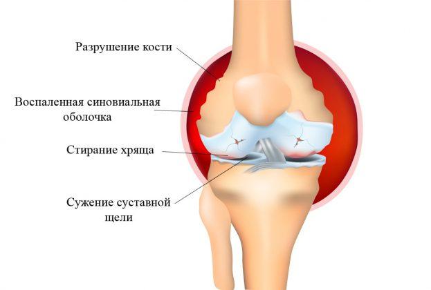 Ревматоидный артрит у детей: симптомы, причины, методы лечения ребенка