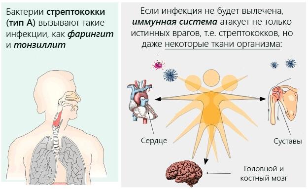 Ревматизм у детей: основные признаки заболевания, советы врачей по лечению и профилактике