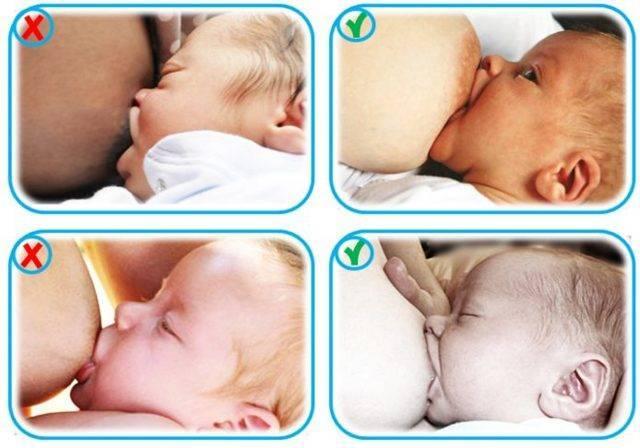 Почему ребенок срыгивает после кормления, новорожденный и что делать