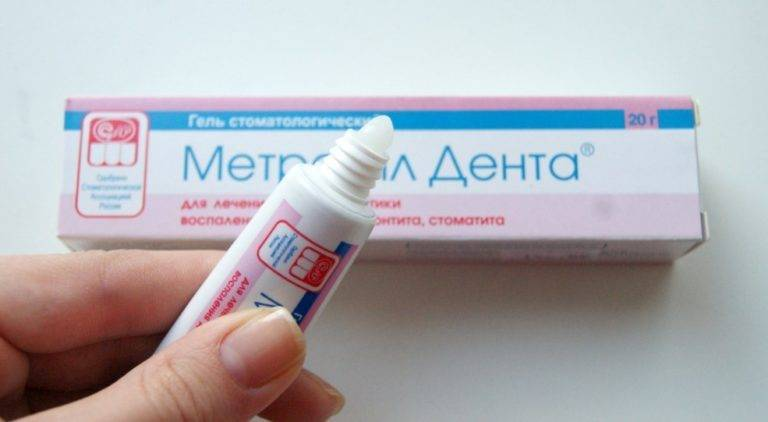 Мазь от стоматита, гель, спрей - все лекарства для лечения стоматита | азбука здоровья