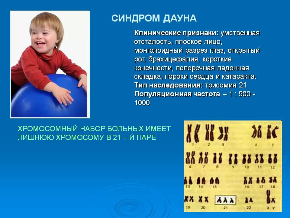Развитие детей с синдромом дауна: особенности и отличия от нормального ребенка
