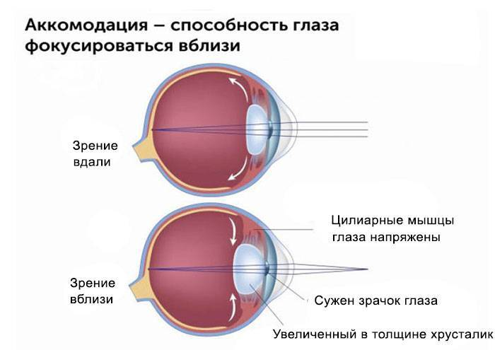 Что такое спазм аккомодации и какого лечения требует эта патология глаз у детей?
