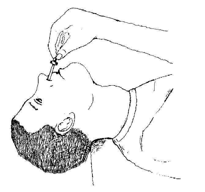 Как закапать капли в нос грудничку (новорожденному) правильно