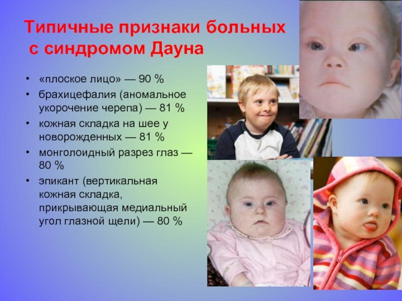 О детях с синдромом Дауна: причины возникновения, признаки и симптомы заболевания у новорожденных