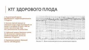Брадикардия у плода на поздних сроках причины - лечение гипертонии