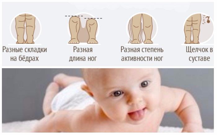 Все способы лечения дисплазии тазобедренного сустава новорожденного малыша