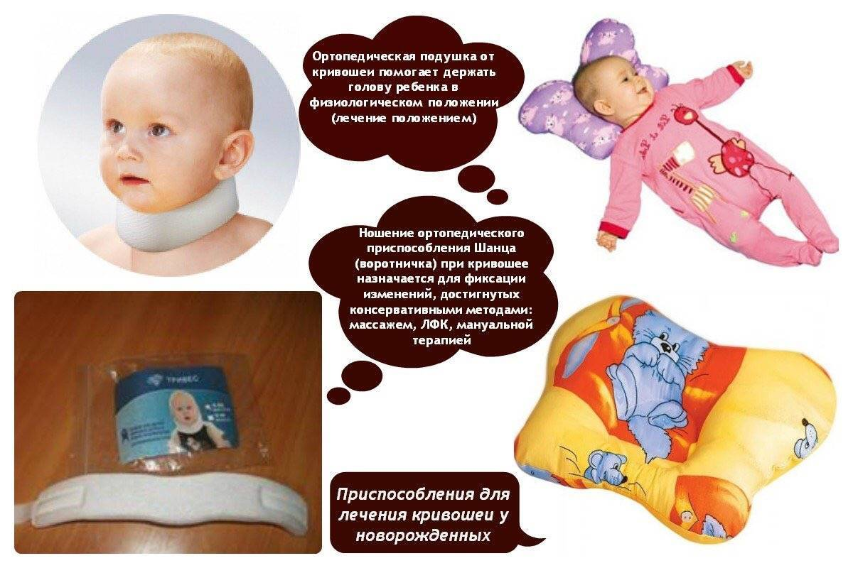 Кривошея у новорожденных: лечение, признаки, причины у младенцев
