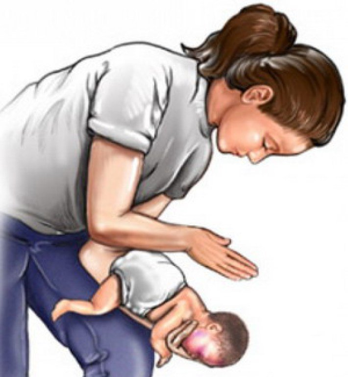 Что делать, если малыш подавился