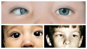 Исправление косоглазия у детей. методы лечения и упражнения для глаз