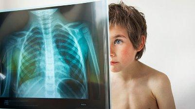 Делать ли рентген ребенку, как это происходит