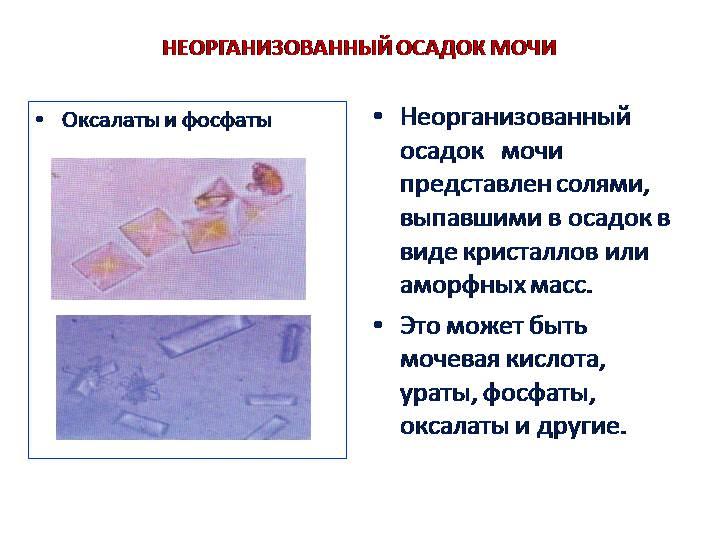 Фосфаты в моче у ребенка: что это значит, причины и лечение