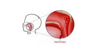 Аденоиды у детей: основные симптомы аденоидита, степени и способы лечения
