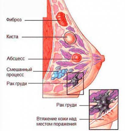 Уплотнение в молочной железе при грудном вскармливании у кормящей мамы